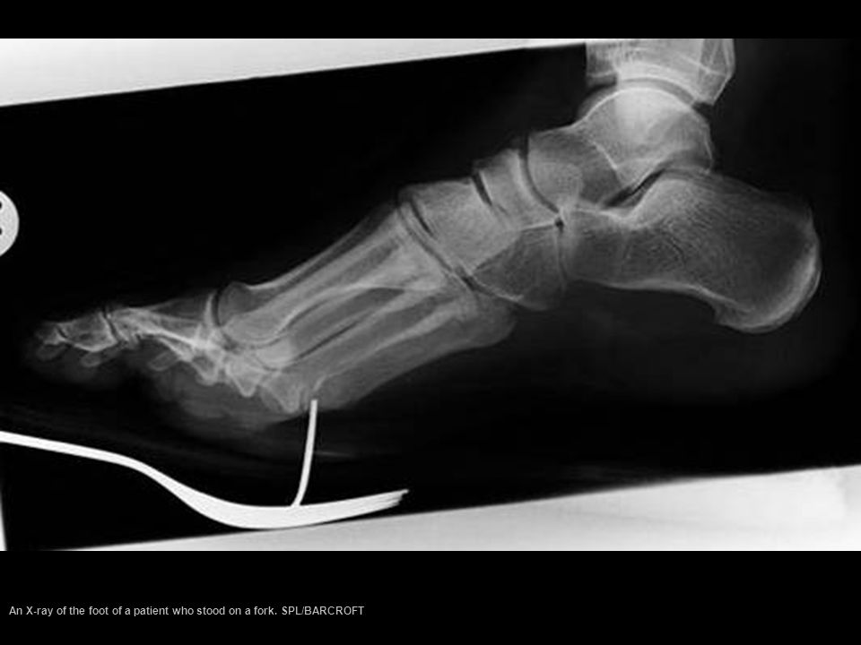 An X-ray of the foot of a patient who stood on a fork. SPL/BARCROFT