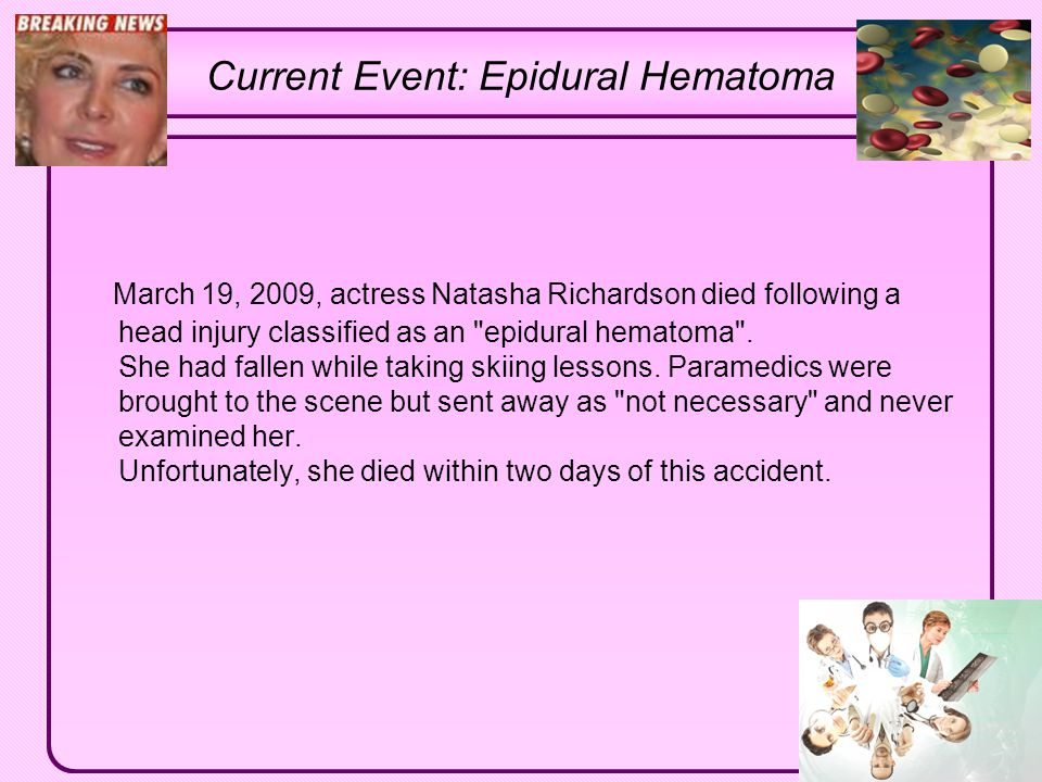 Click to edit Master text styles Second level Third level Fourth level Fifth level Current Event: Epidural Hematoma March 19, 2009, actress Natasha Ri