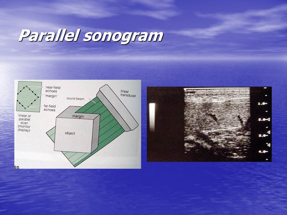 Parallel sonogram
