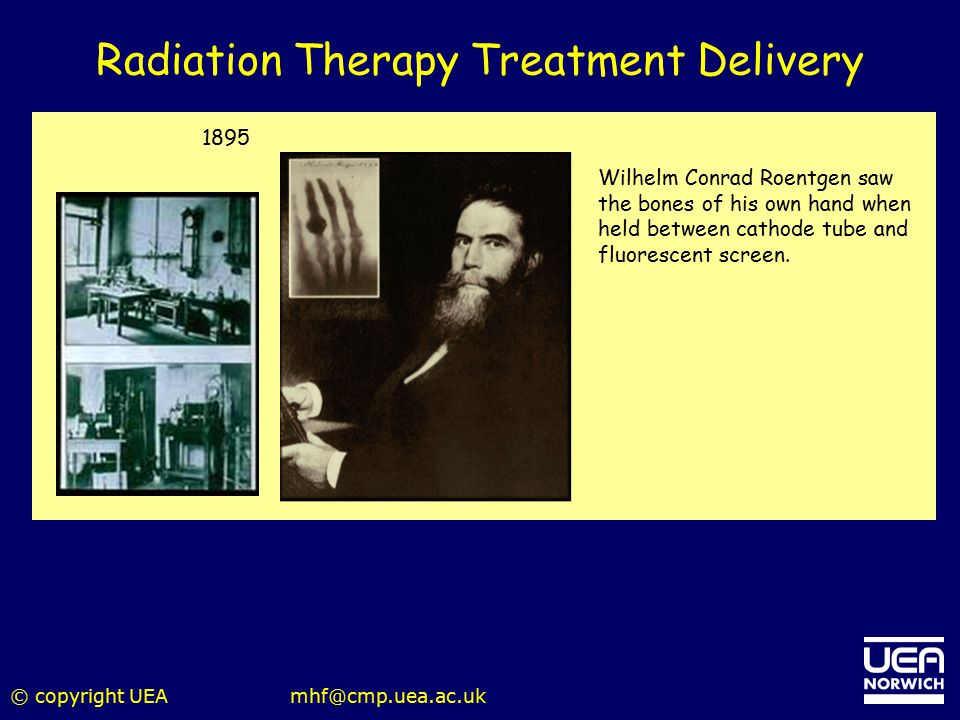 © copyright UEAmhf@cmp.uea.ac.uk Radiation Therapy Treatment Delivery 1895 Wilhelm Conrad Roentgen saw the bones of his own hand when held between cat
