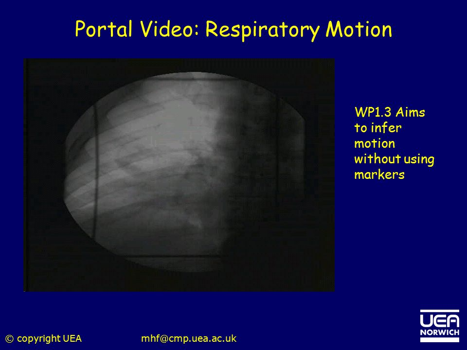 © copyright UEAmhf@cmp.uea.ac.uk Portal Video: Respiratory Motion WP1.3 Aims to infer motion without using markers