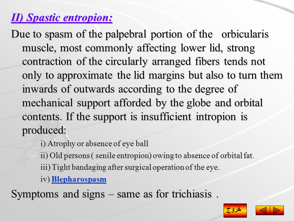 II) Spastic entropion: Due to spasm of the palpebral portion of the orbicularis muscle, most commonly affecting lower lid, strong contraction of the circularly arranged fibers tends not only to approximate the lid margins but also to turn them inwards of outwards according to the degree of mechanical support afforded by the globe and orbital contents.