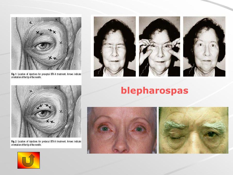 blepharospas