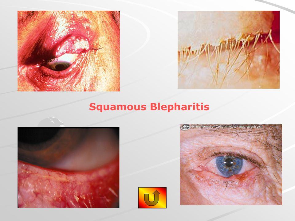 Squamous Blepharitis