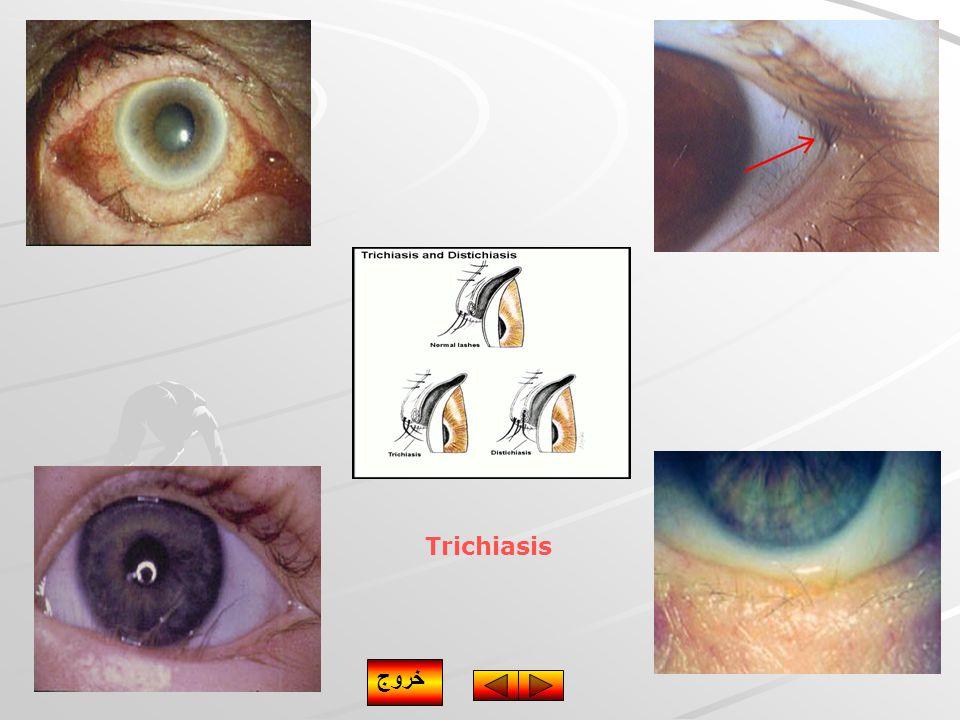Trichiasis خروج