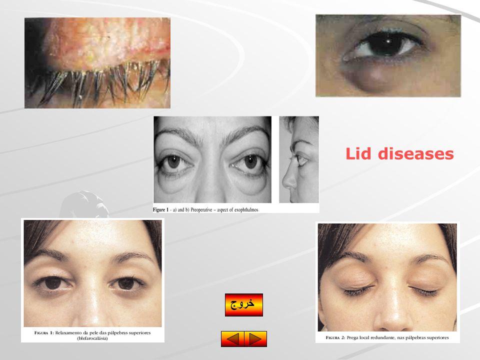 Lid diseases خروج