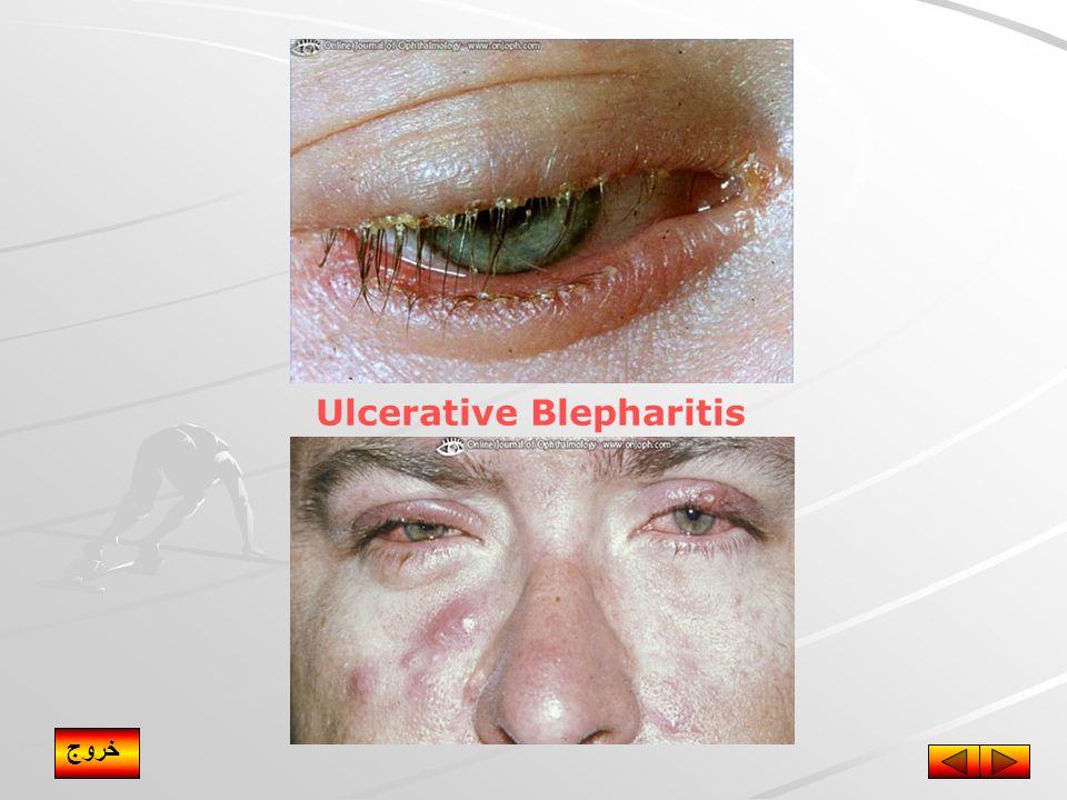 Ulcerative Blepharitis خروج