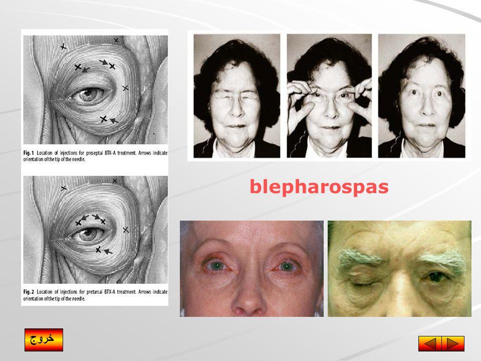 blepharospas خروج