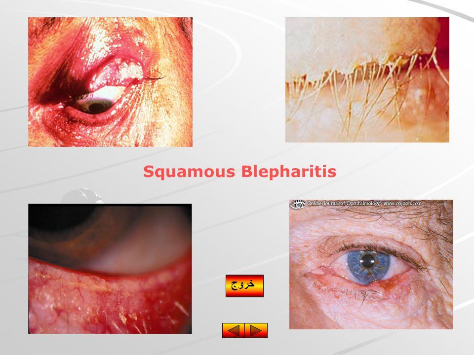 Squamous Blepharitis خروج