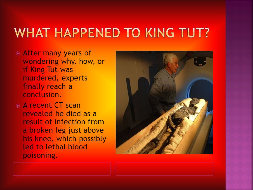  After many years of wondering why, how, or if King Tut was murdered, experts finally reach a conclusion.  A recent CT scan revealed he died as a re