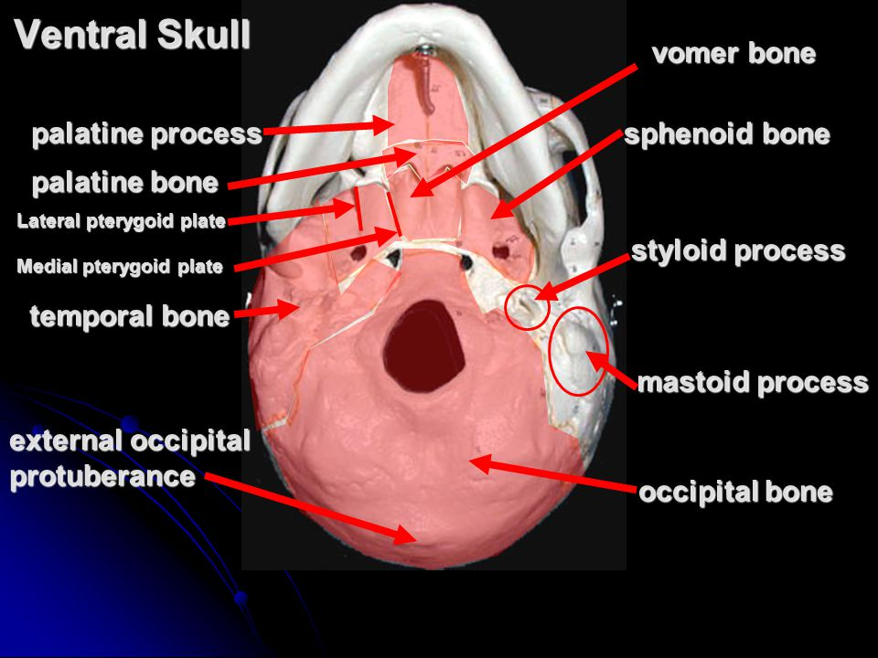 Ventral Skull palatine process palatine bone vomer bone mastoid process styloid process external occipital protuberance sphenoid bone temporal bone occipital bone Lateral pterygoid plate Medial pterygoid plate