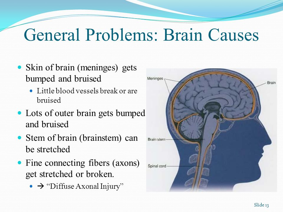 General Problems: Brain Causes Skin of brain (meninges) gets bumped and bruised Little blood vessels break or are bruised Lots of outer brain gets bumped and bruised Stem of brain (brainstem) can be stretched Fine connecting fibers (axons) get stretched or broken.