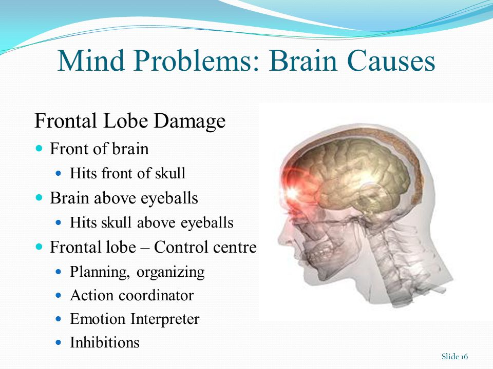 Mind Problems: Brain Causes Frontal Lobe Damage Front of brain Hits front of skull Brain above eyeballs Hits skull above eyeballs Frontal lobe – Control centre Planning, organizing Action coordinator Emotion Interpreter Inhibitions Slide 16