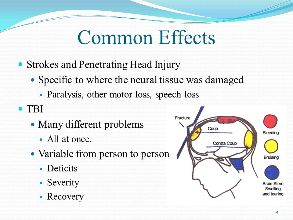 Common Effects Strokes and Penetrating Head Injury Specific to where the neural tissue was damaged Paralysis, other motor loss, speech loss TBI Many different problems All at once.