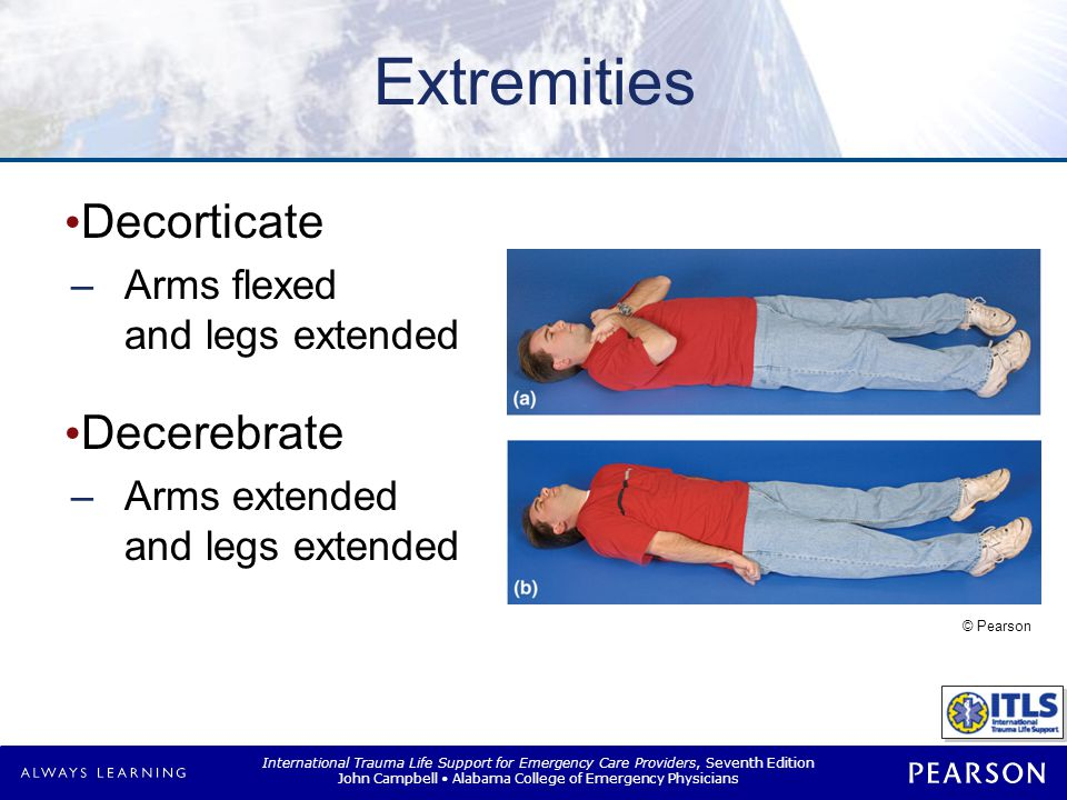 International Trauma Life Support for Emergency Care Providers, Seventh Edition John Campbell Alabama College of Emergency Physicians Extremities Decorticate –Arms flexed and legs extended Decerebrate –Arms extended and legs extended © Pearson