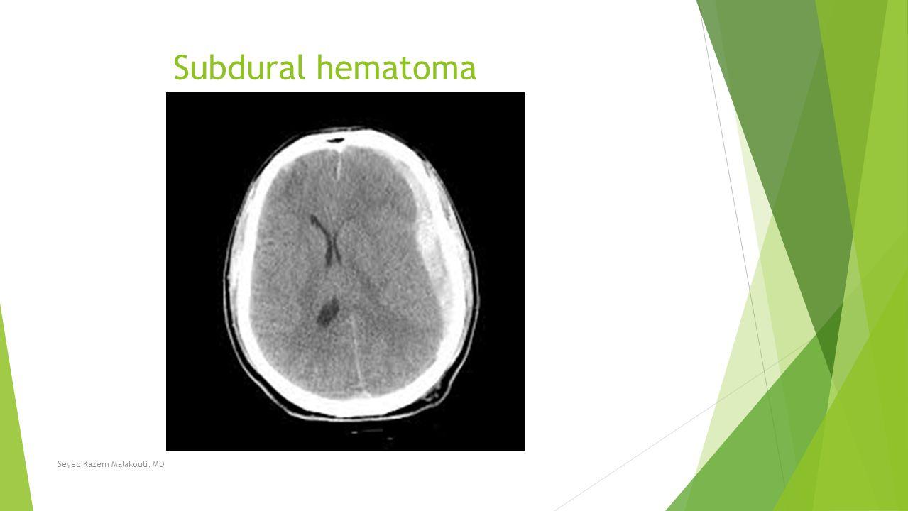 Subdural hematoma Seyed Kazem Malakouti, MD