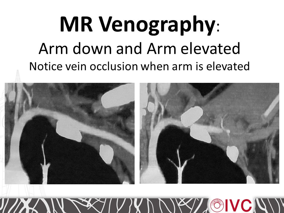 MR Venography : Arm down and Arm elevated Notice vein occlusion when arm is elevated