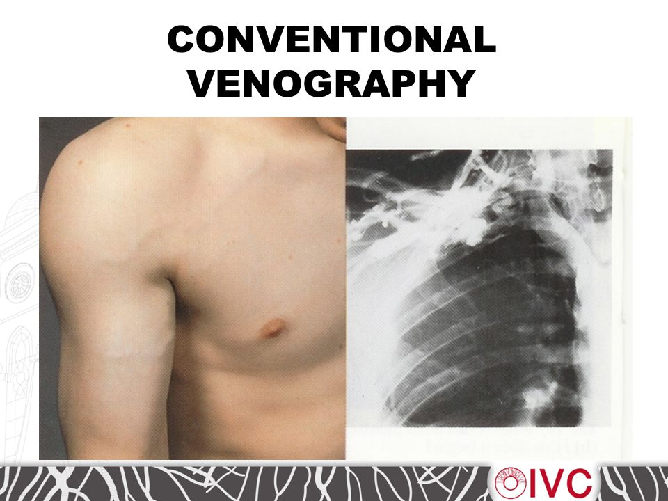 CONVENTIONAL VENOGRAPHY