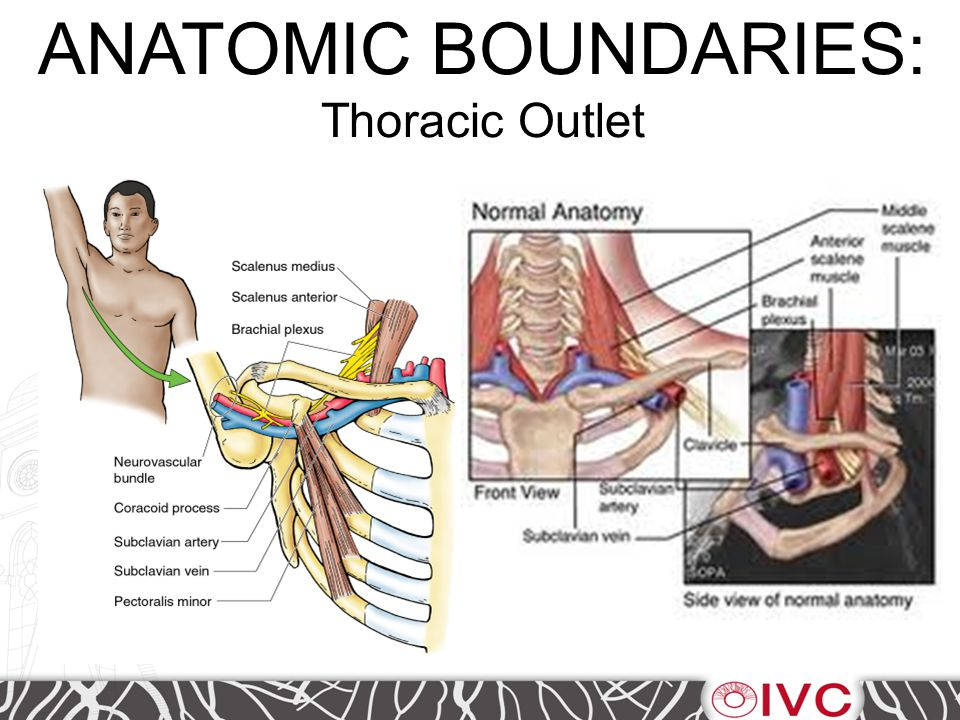 Thoracic Outlet Syndrome Three Types: 1- 95% have neurological symptoms (C8 and T1) 2- 4% have venous symptoms 3- 1% have arterial symptoms Paget-Schroetter (Effort Thrombosis) describes the venous syndrome