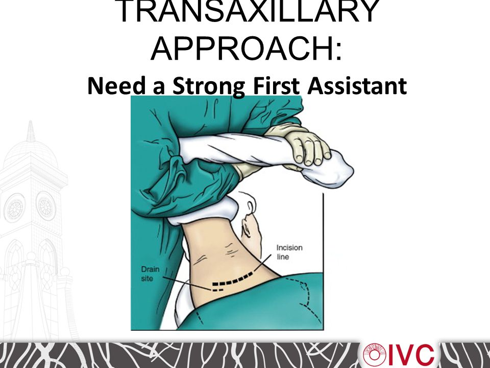 TRANSAXILLARY APPROACH: Need a Strong First Assistant