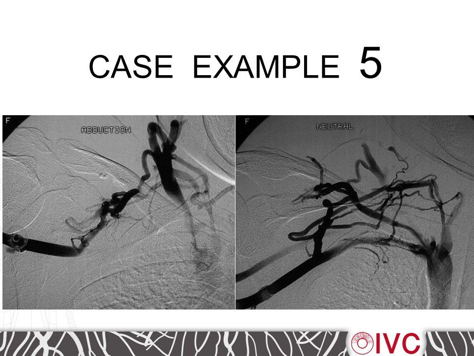 CASE EXAMPLE 5