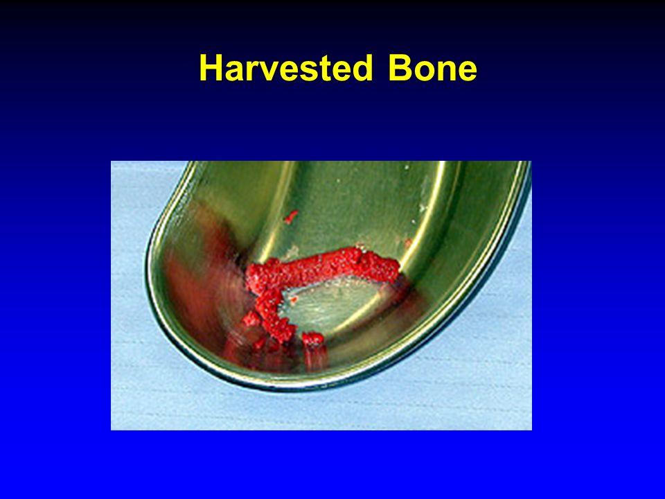 Harvested Bone