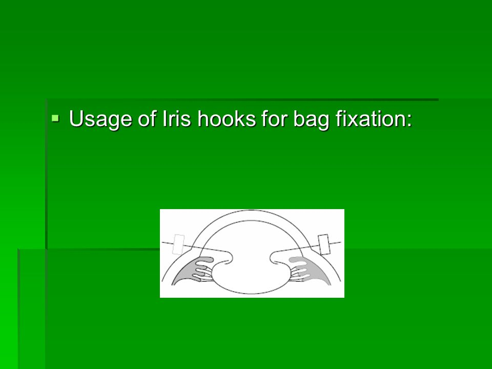  Usage of Iris hooks for bag fixation: