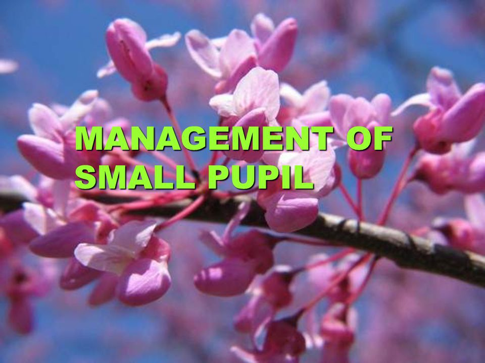 MANAGEMENT OF SMALL PUPIL