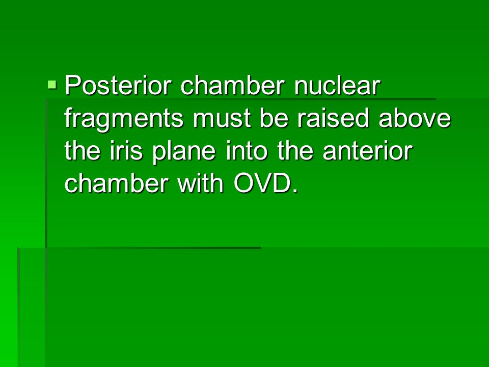  Posterior chamber nuclear fragments must be raised above the iris plane into the anterior chamber with OVD.