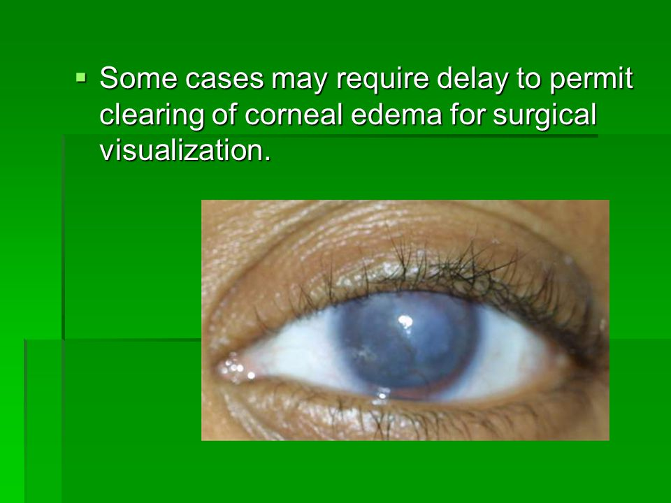  Some cases may require delay to permit clearing of corneal edema for surgical visualization.