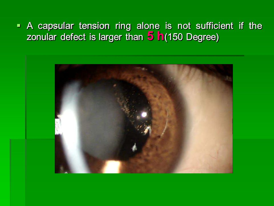  A capsular tension ring alone is not sufficient if the zonular defect is larger than 5 h (150 Degree)