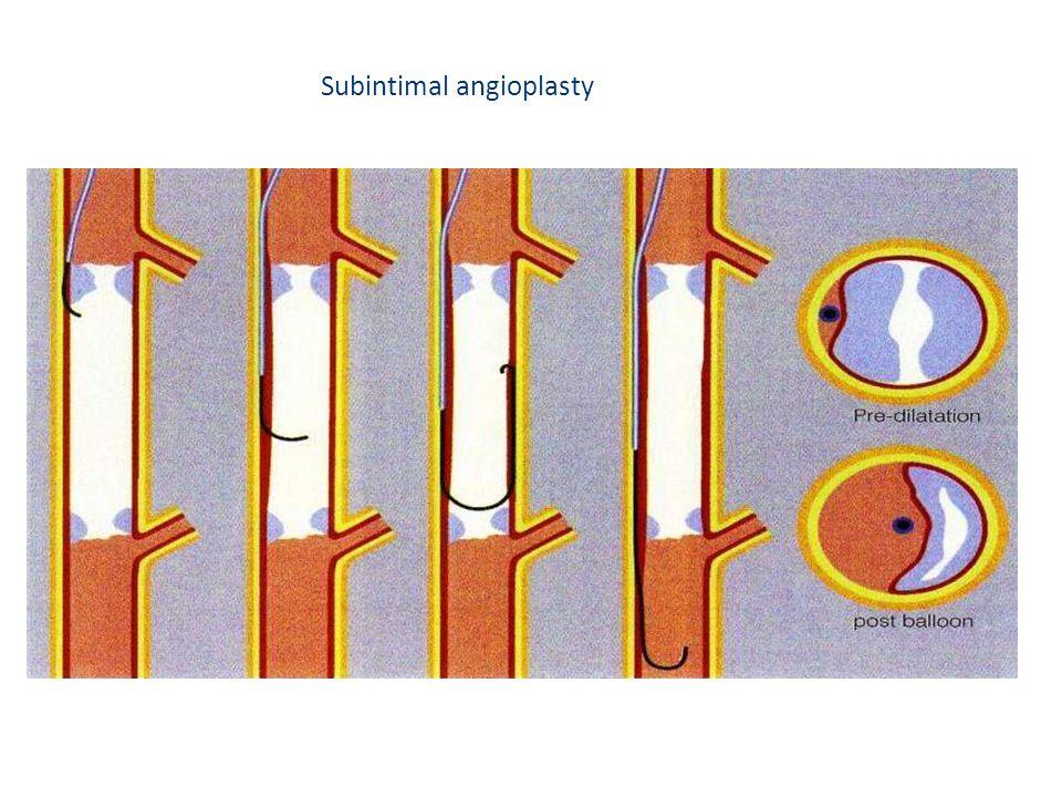 Subintimal angioplasty