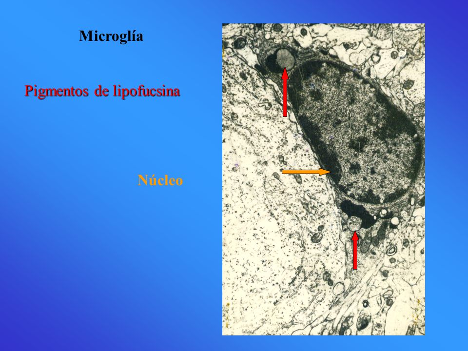 Microglía Núcleo Pigmentos de lipofucsina