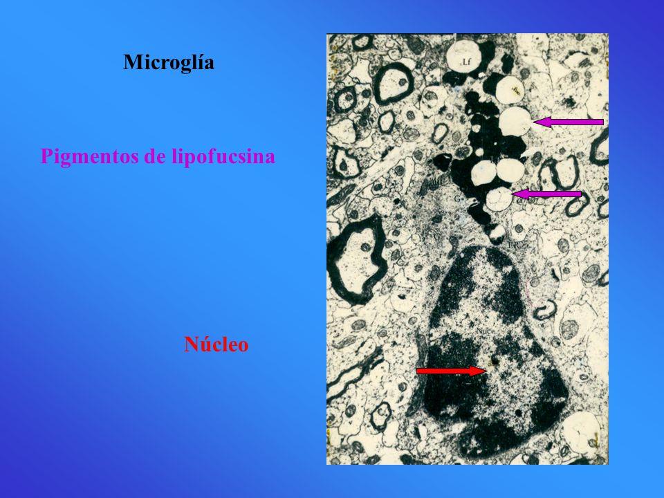 Microglía Pigmentos de lipofucsina Núcleo
