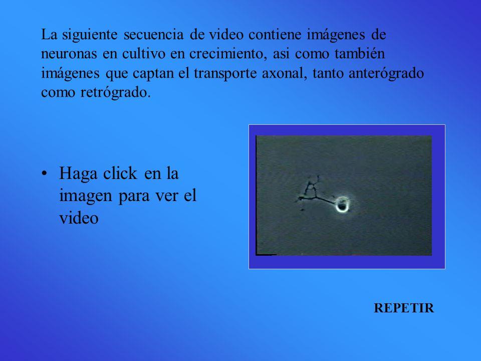La siguiente secuencia de video contiene imágenes de neuronas en cultivo en crecimiento, asi como también imágenes que captan el transporte axonal, tanto anterógrado como retrógrado.