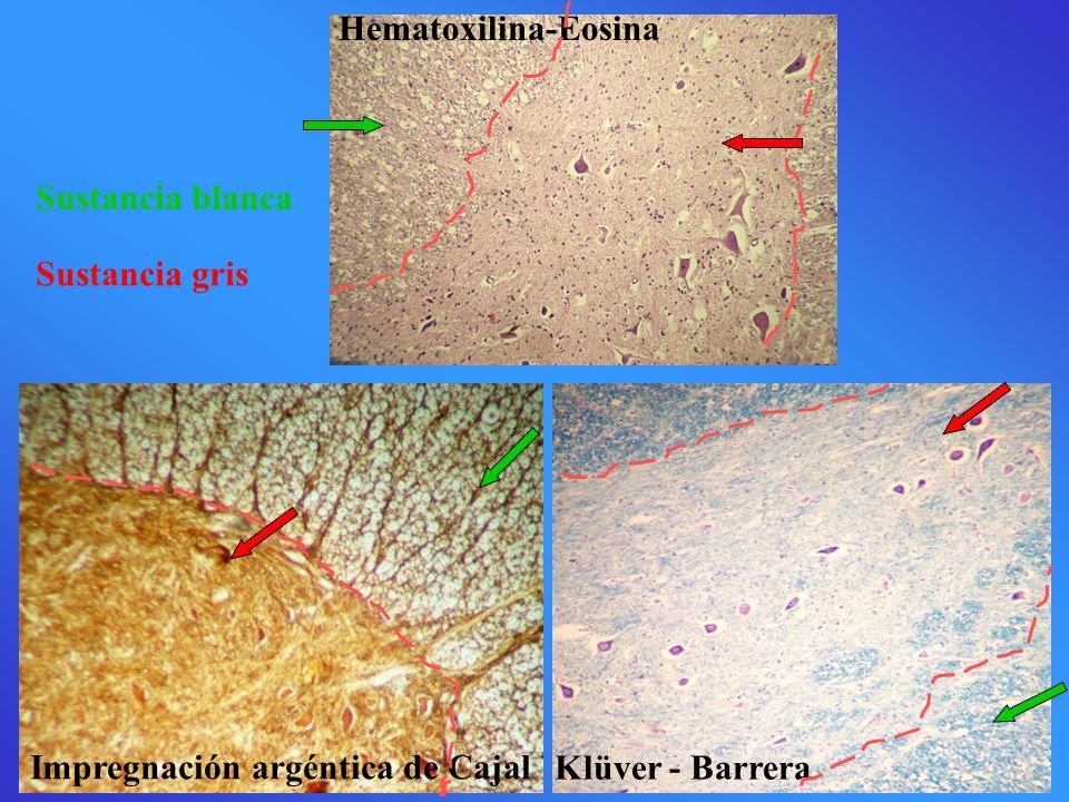 Impregnación argéntica de Cajal Klüver - Barrera Hematoxilina-Eosina Sustancia blanca Sustancia gris