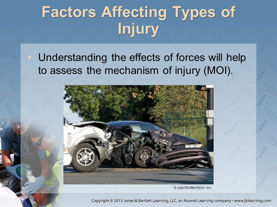 Factors Affecting Types of Injury Understanding the effects of forces will help to assess the mechanism of injury (MOI). © jcpjr/ShutterStock, Inc.