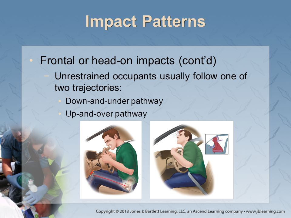 Impact Patterns Frontal or head-on impacts (cont'd) −Unrestrained occupants usually follow one of two trajectories: Down-and-under pathway Up-and-over