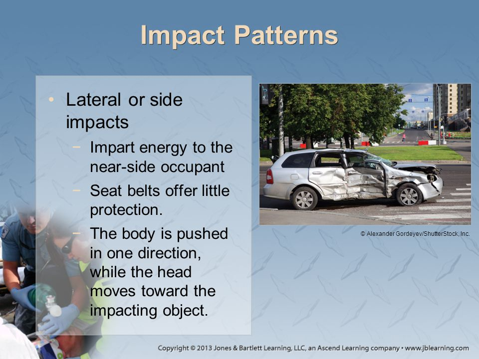 Impact Patterns Lateral or side impacts −Impart energy to the near-side occupant −Seat belts offer little protection. −The body is pushed in one direc