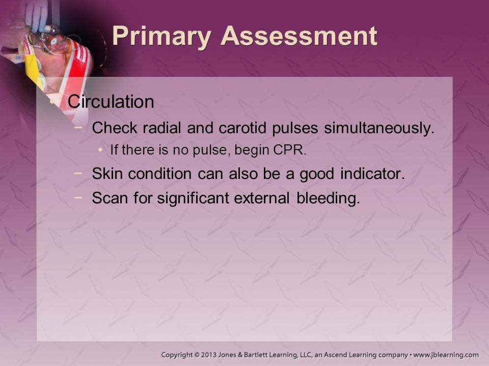 Primary Assessment Circulation −Check radial and carotid pulses simultaneously. If there is no pulse, begin CPR. −Skin condition can also be a good in