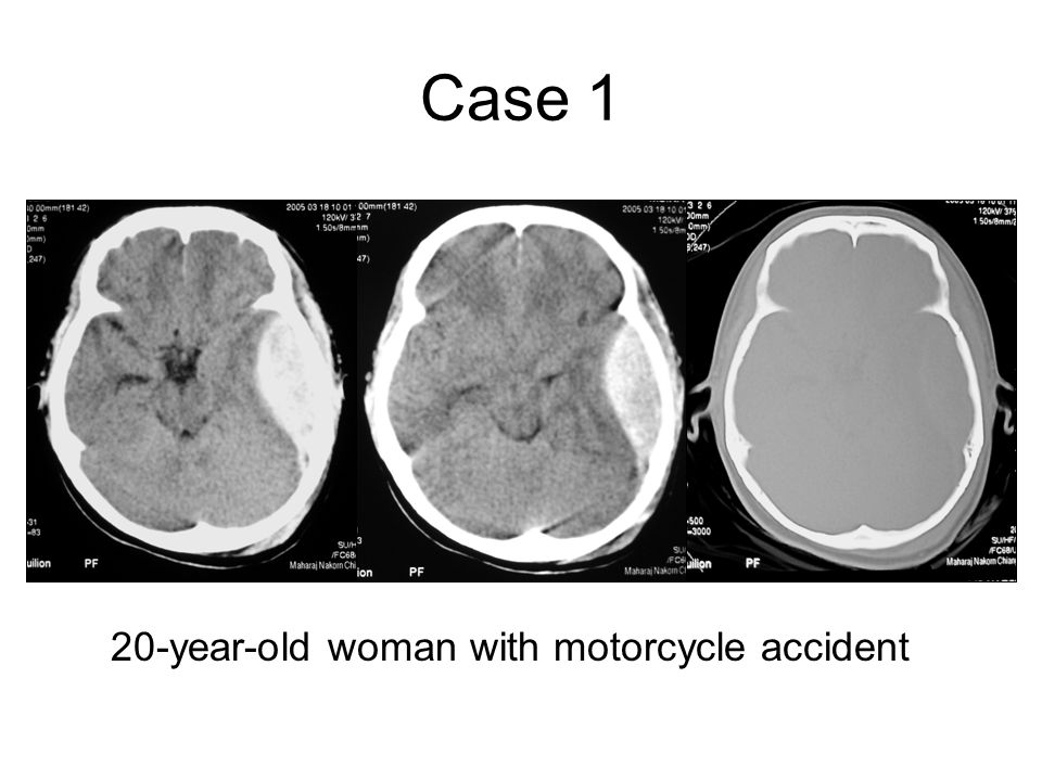 Case 1 20-year-old woman with motorcycle accident