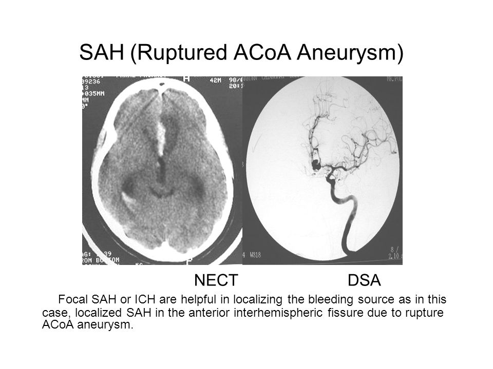 SAH (Ruptured ACoA Aneurysm) NECT DSA Focal SAH or ICH are helpful in localizing the bleeding source as in this case, localized SAH in the anterior interhemispheric fissure due to rupture ACoA aneurysm.