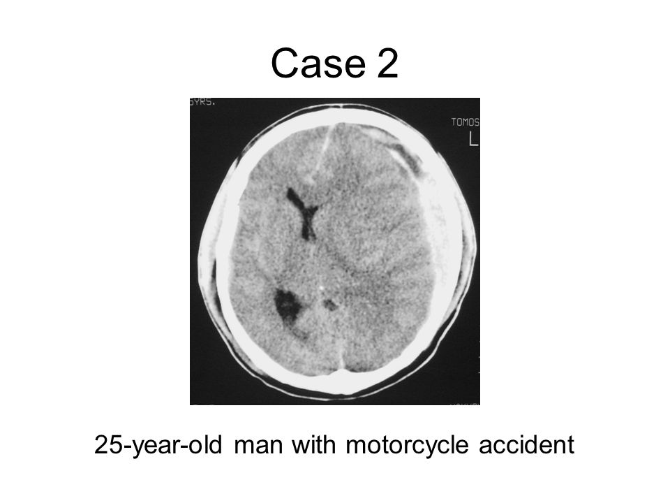 Case 2 25-year-old man with motorcycle accident