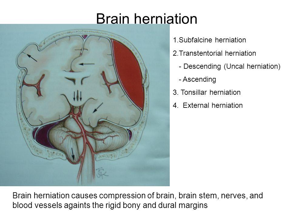 Brain herniation 1.Subfalcine herniation 2.Transtentorial herniation - Descending (Uncal herniation) - Ascending 3. Tonsillar herniation 4. External h
