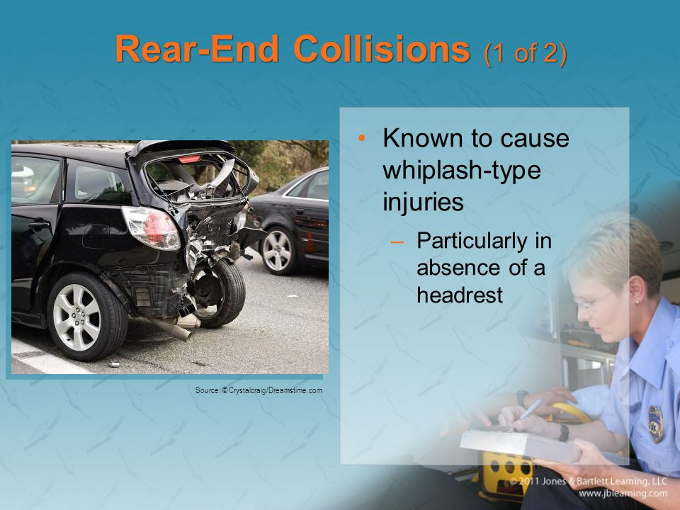 Rear-End Collisions (1 of 2) Known to cause whiplash-type injuries –Particularly in absence of a headrest Source: © Crystalcraig/Dreamstime.com