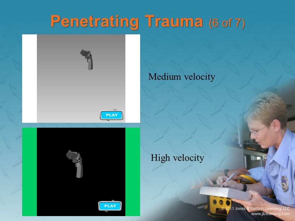Penetrating Trauma (6 of 7) Medium velocity High velocity