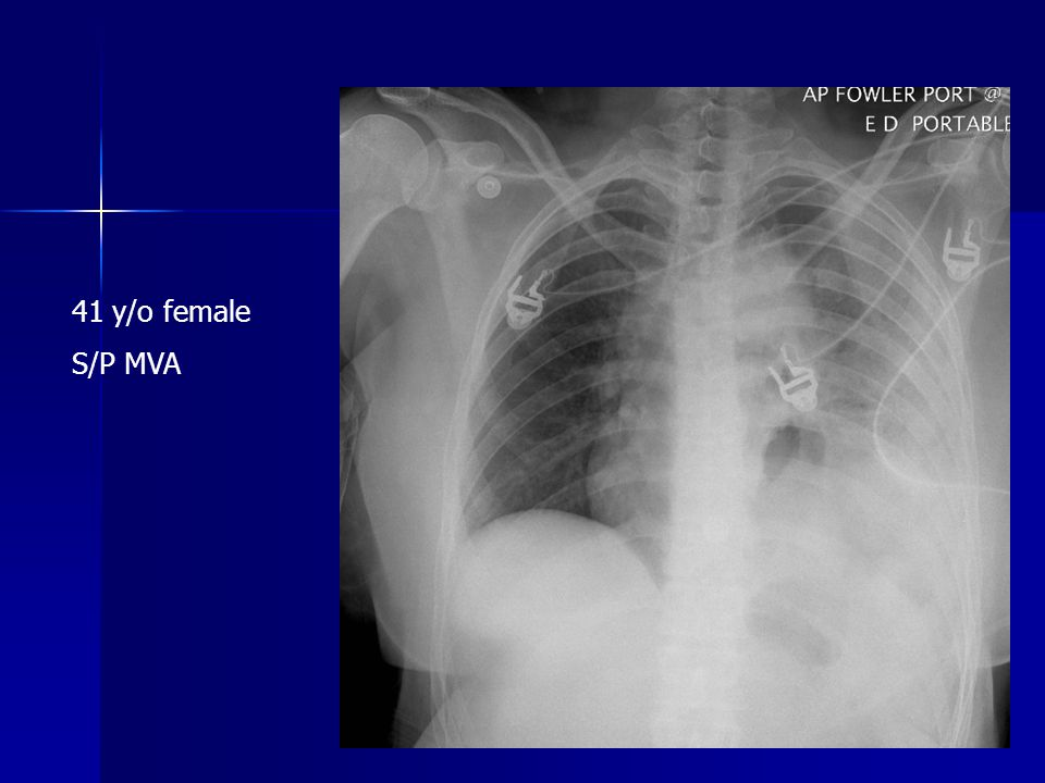 41 y/o female S/P MVA
