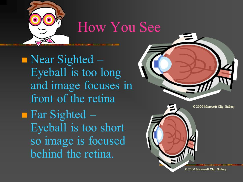 LIGHT & ITS USES: Lenses Concave Lenses – Lens that is thicker at the edges and thinner in the center.