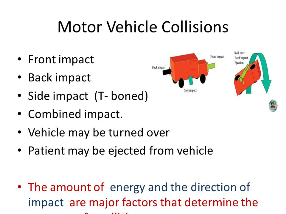Motor Vehicle Collisions Front impact Back impact Side impact (T- boned) Combined impact.