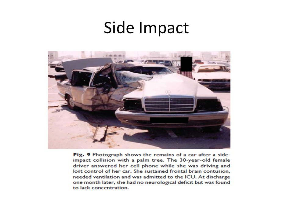 Side Impact